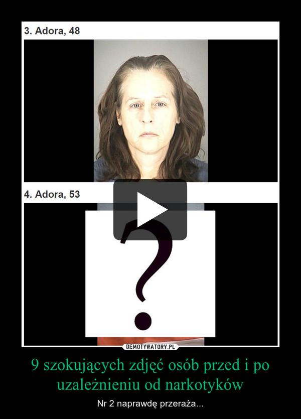 9 szokujących zdjęć osób przed i po uzależnieniu od narkotyków – Nr 2 naprawdę przeraża...
