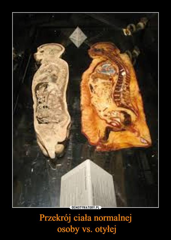 Przekrój ciała normalnej osoby vs. otyłej –