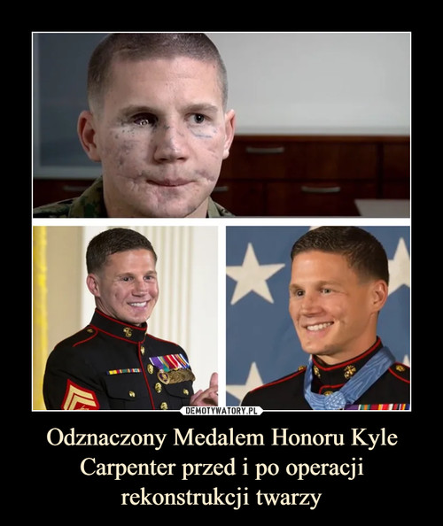 Odznaczony Medalem Honoru Kyle Carpenter przed i po operacji rekonstrukcji twarzy