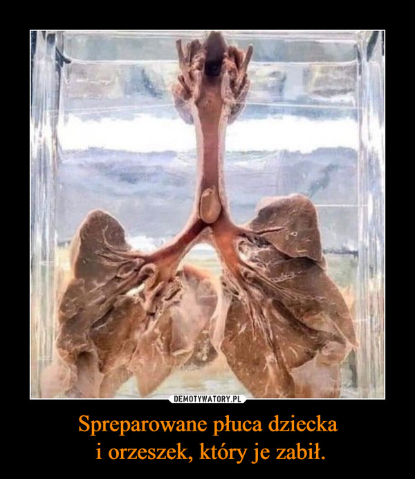 Spreparowane płuca dziecka i orzeszek, który je zabił. –